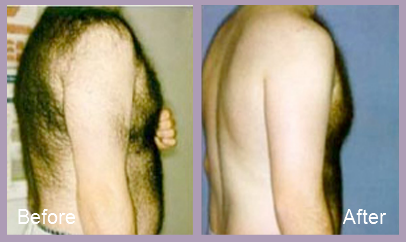 One male patient's experience with laser hair removal surgery.