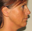 The same woman's face after undergoing her skin tightening procedure in St. Louis' Laser Liposuction Center.