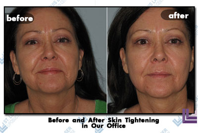 Before and after this woman's skin tightening procedure in the St. Louis laser Liposuction Center.