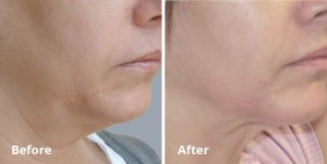Forma- Dr. Wright_laser lipo and vein center