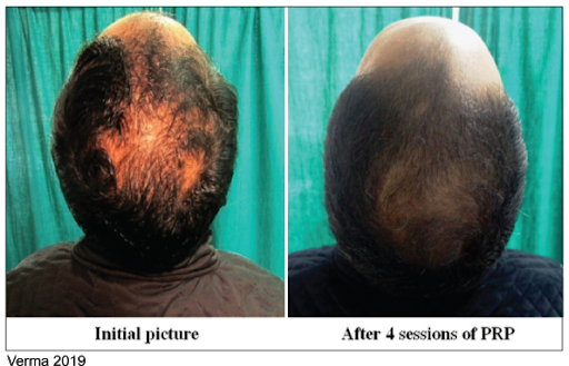 PRP Therapy vs. Rogaine for Hair Loss